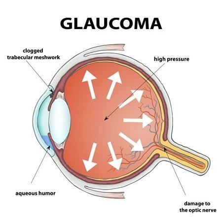 ต้อหิน (Glaucoma)