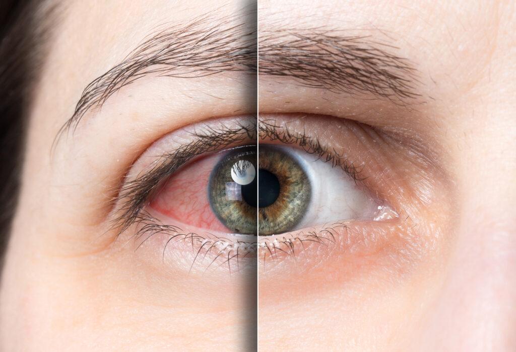 เบาหวานขึ้นตา (Diabetic Retinopathy)